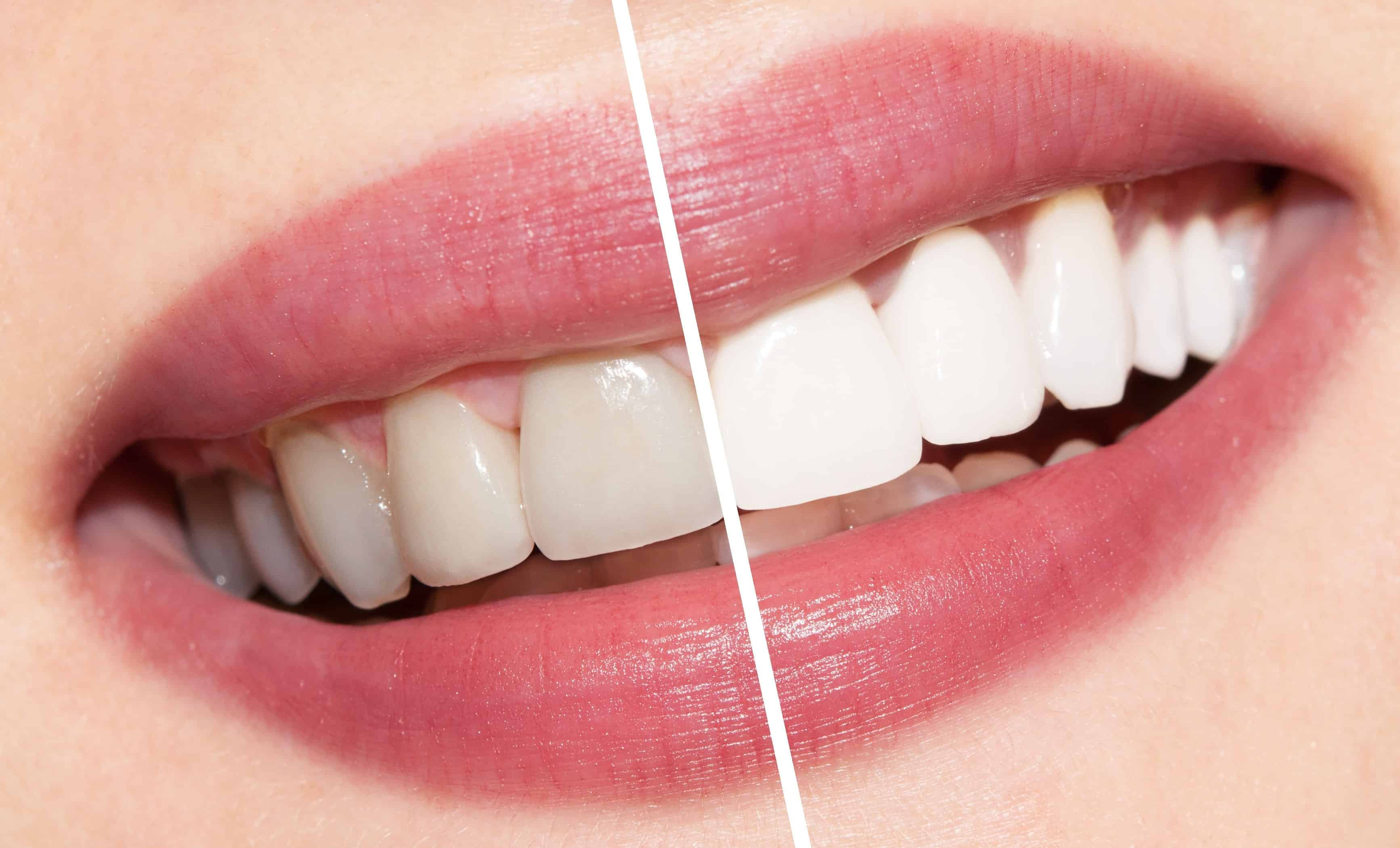 Natural teeth whitening Archives - Forestbrook Dental